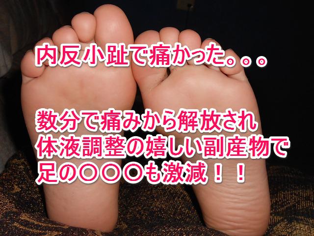 内反小趾の痛みが体液調整で緩和したらむくみが解消していった症例